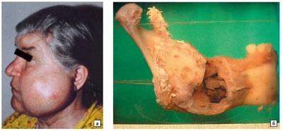Амелобластома нижней челюсти фото