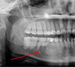Амелобластома нижней челюсти на ренгеновском снимке