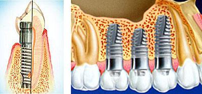 имплант на зуб