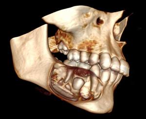 как выглядит фолликулярная киста челюсти