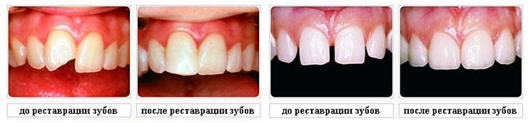 Художественная реставрация зубов до и после