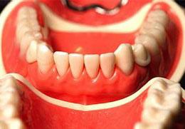 Период привыкания к зубным протезам