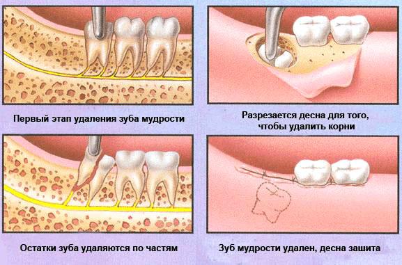 схема удаления зуба мудрости-2