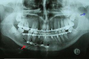 снимок шинирование нижней челюсти