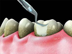 методы удаления зубного камня