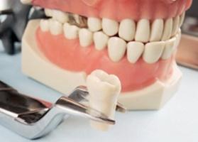 коронки на зубы фото