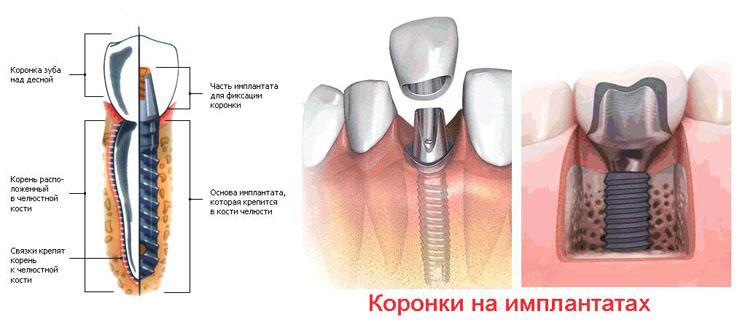 стоматологические коронки на имплант