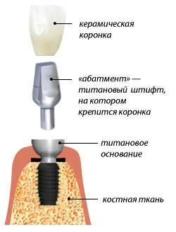Схема установки импланта