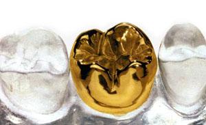 золотая коронка на зубы фото